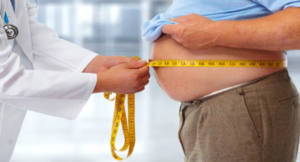 obesita-1