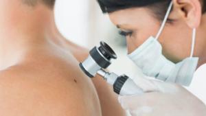 Bere alcol aumenta rischio tumori pelle, anche non melanomi