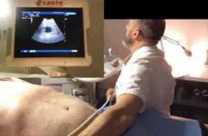 Boom di tumori alla prostata: aumentano tra i giovani quelli al testicolo