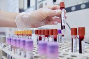 Coronavirus: Toscana sperimenta la cura con plasma, pazienti guariti